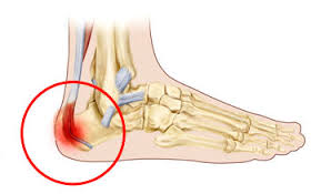 Border Podiatry Centre Why Does My Child Have Heel Pain